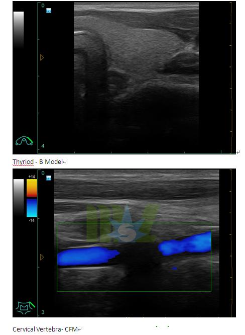 how does doppler ultrasound work