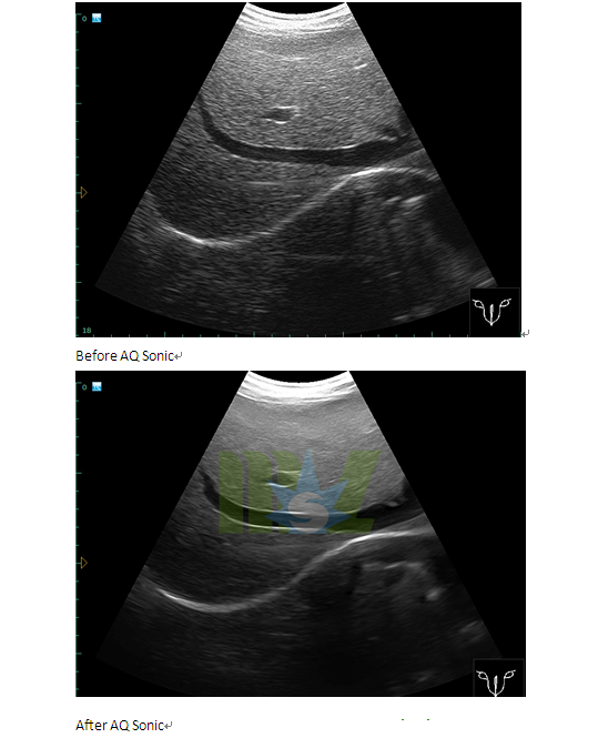 colour doppler ultrasound during pregnancy
