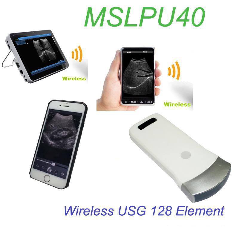 Wireless USG 128 Element Ultrasound Convex Probe