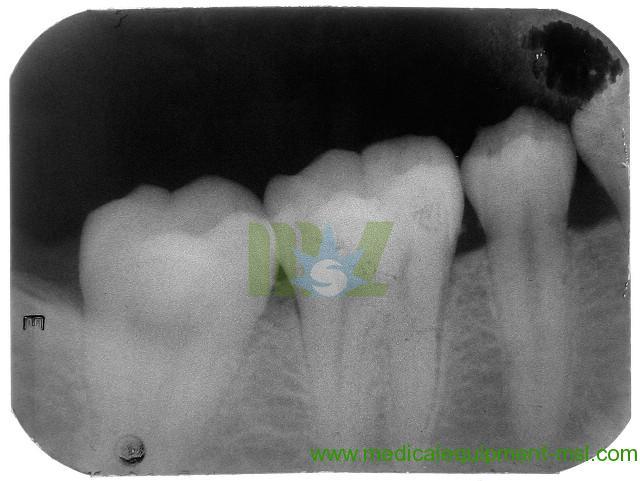 Use x-ray unit MSLK01