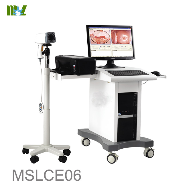 Colposcope video machine for gynaecology MSLCE06