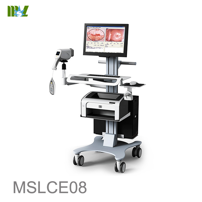 colposcope video machine MSLCE08
