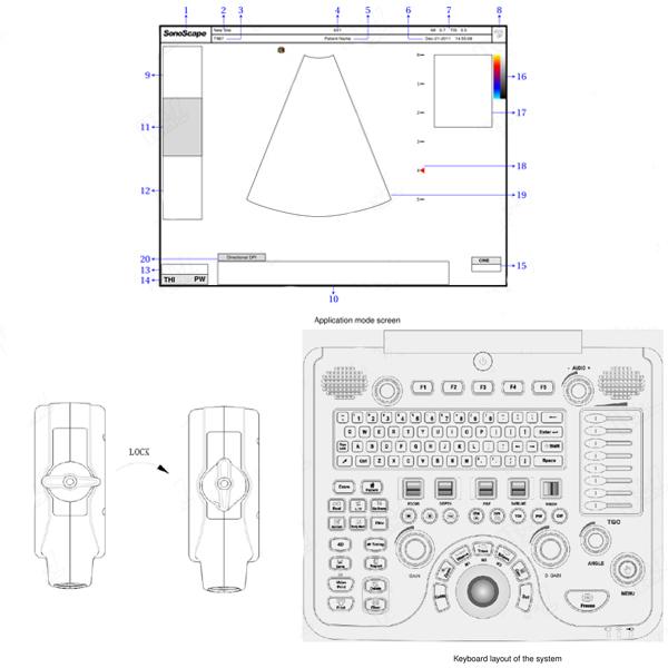 doppler ultrasound machine