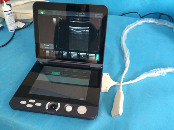 Best ultrasound machine MSLPU44