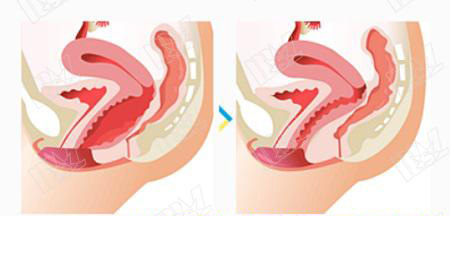 vaginal tightening surgery before and after