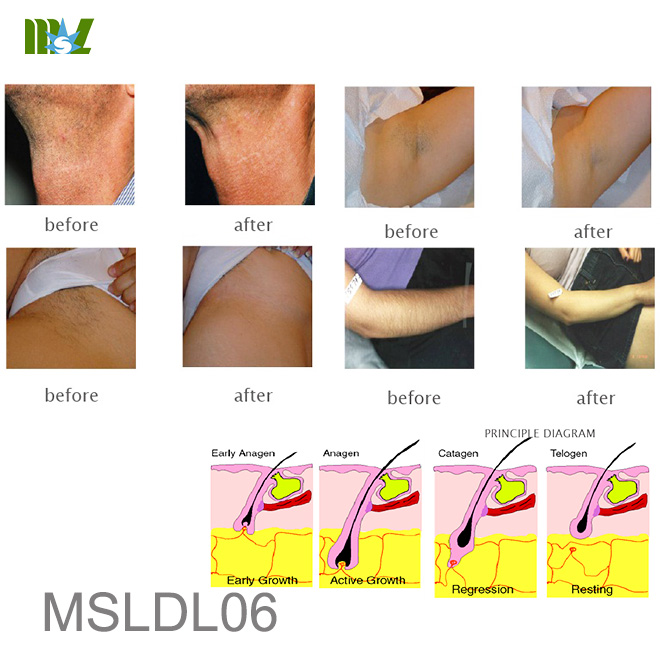ingrown hair removal MSLDL06