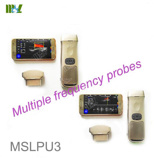 ultrasound app