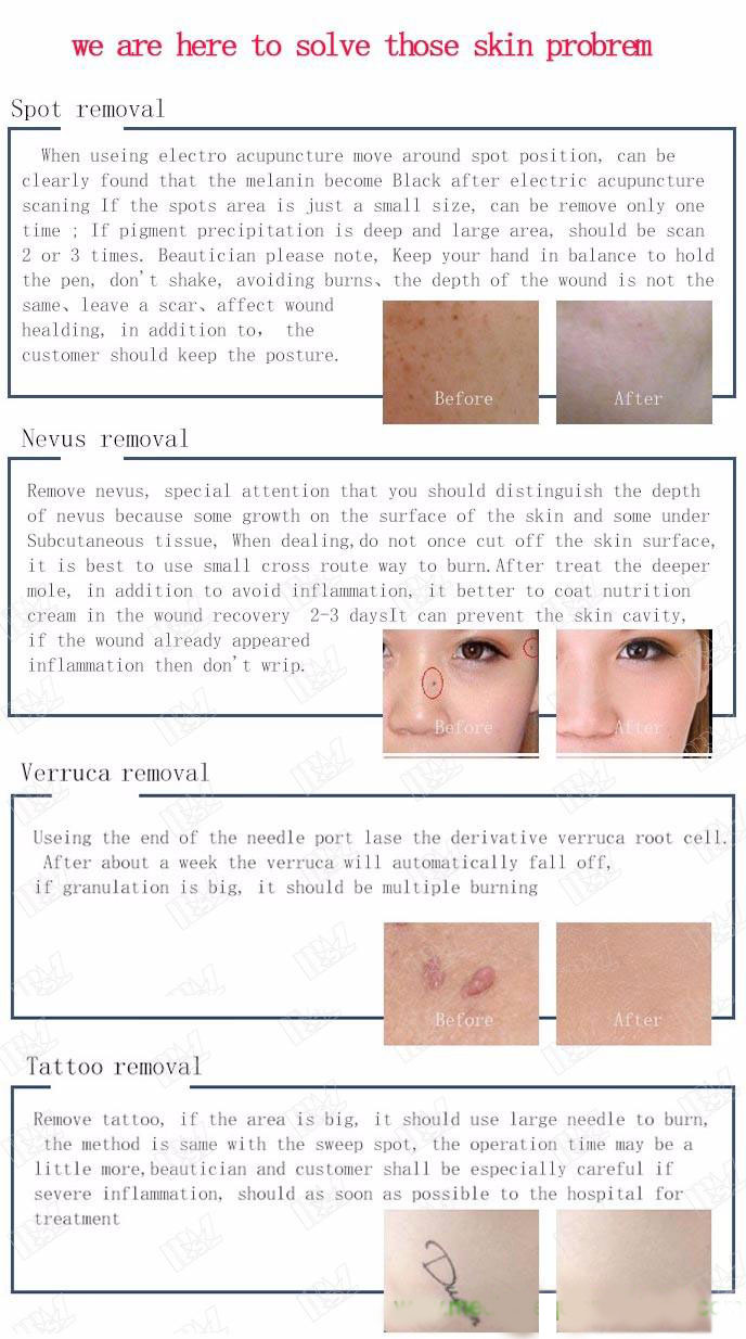 Beauty Mole Removal