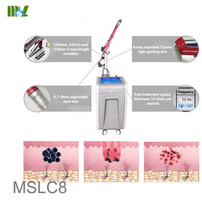 Q-switch YAG Laser pigmentation Removal