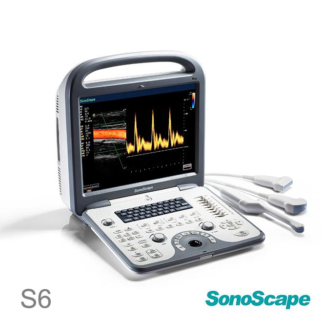 SonoScape S6 price