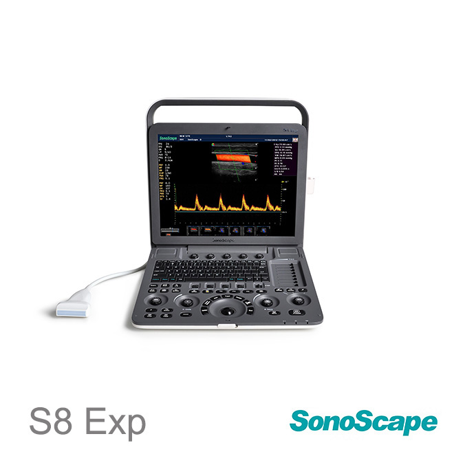 sonoscape ultrasound machine S8EXP