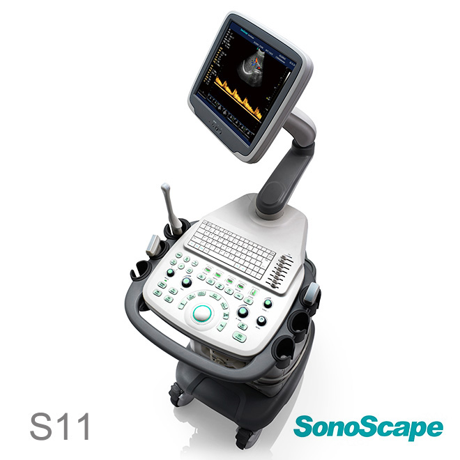 SonoScape S11
