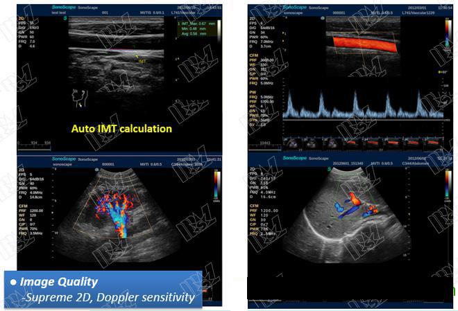 handheld ultrasound machine for sale