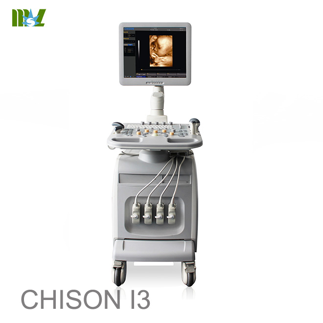 ultrasonido 4d chison i3