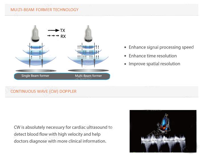 ultrasonido renal chison i3