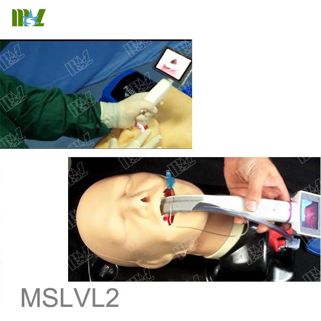 mccoy laryngoscope