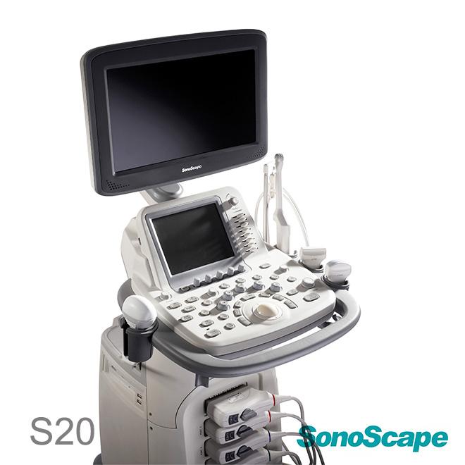 sonoscape ultrasound price