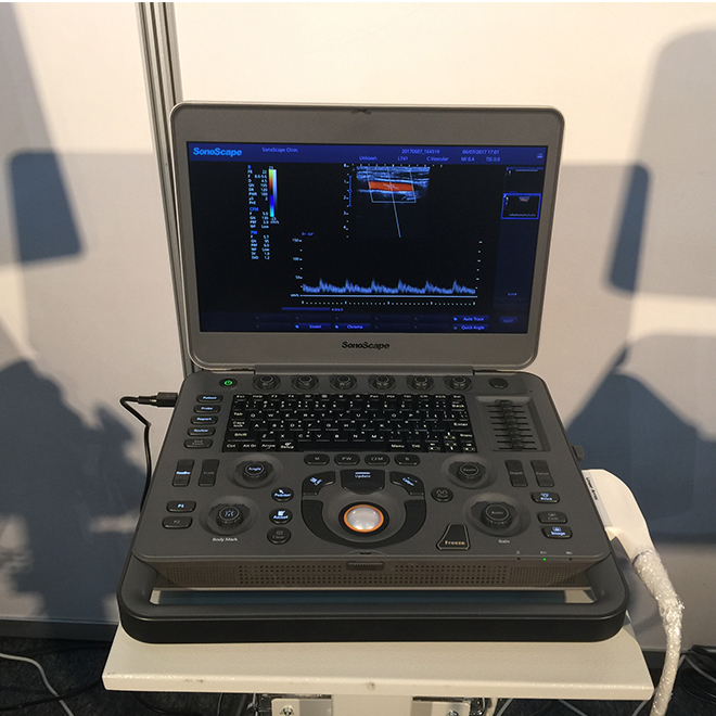 sonoscape ultrasound X3 price