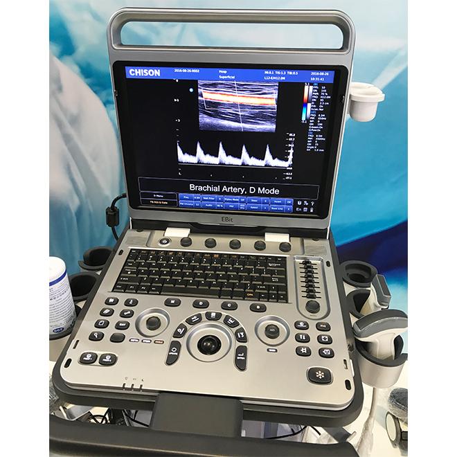 ultrasonido 4d doppler vascular Chison Ebit 50