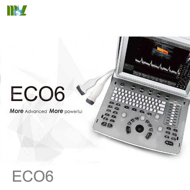 Chison ultrasound Chison ECO6