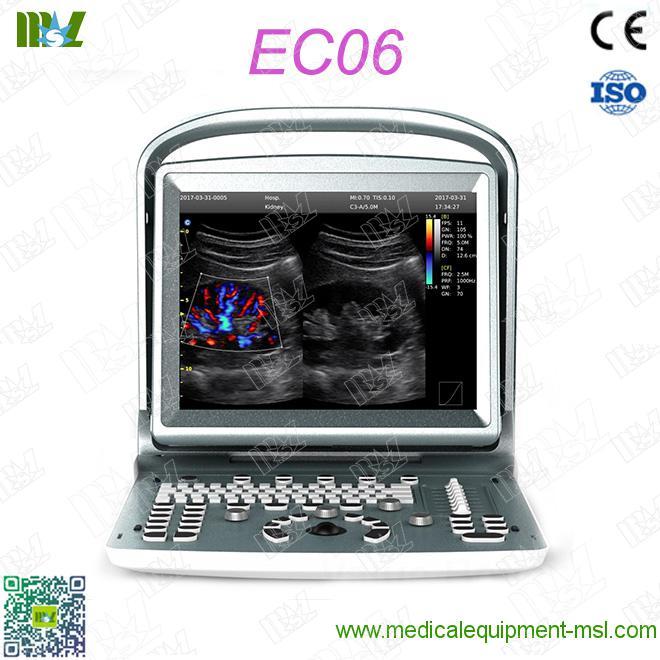 Chison ECO6