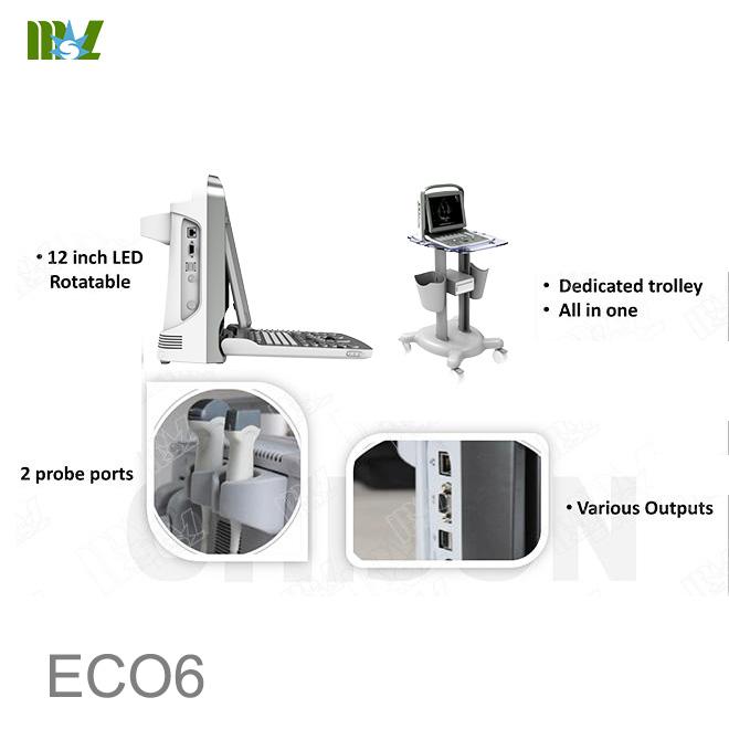 Eco doppler carotidian Chison ECO6