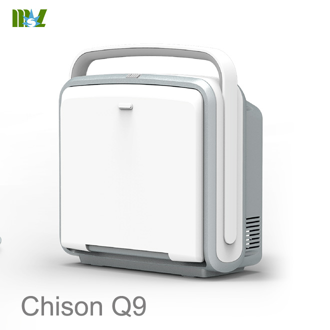 Chison Q9 review