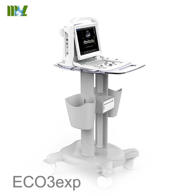 Eco doppler carotidian