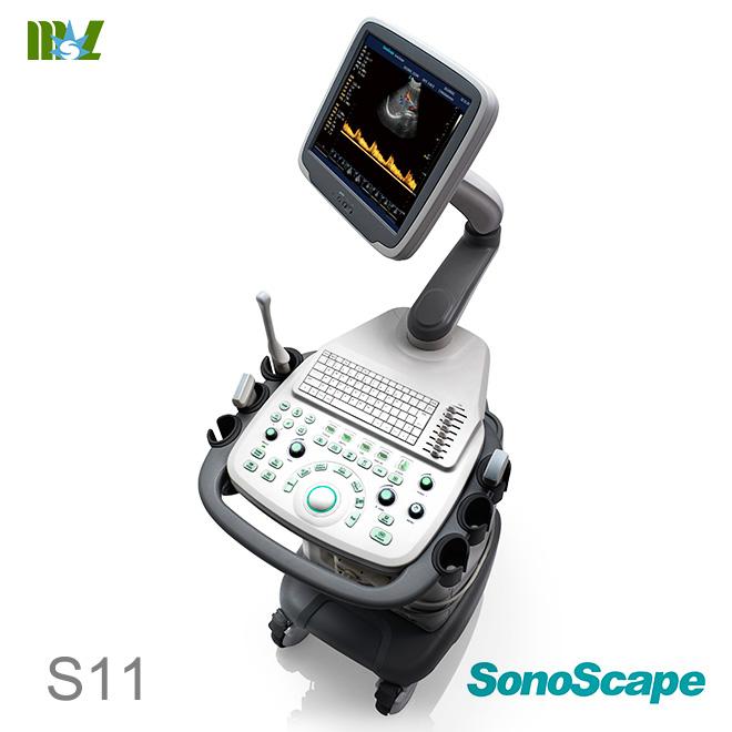 Eco doppler vascular SonoScape S11 price : doppler vascular