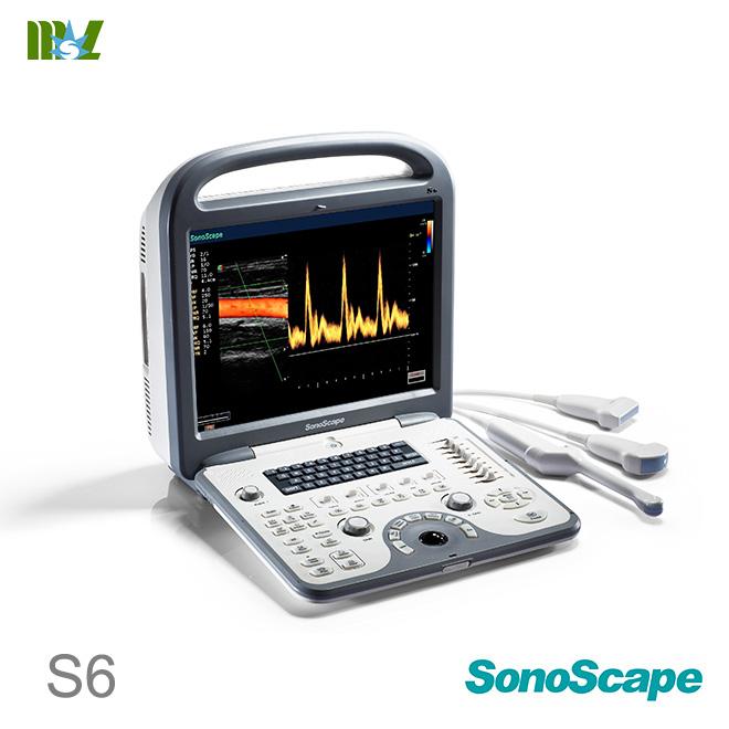 ultrasonido 4d sonoscape s6 price | ecografie 4d