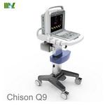 Factory direct sales ecografo Chison Q9 price list