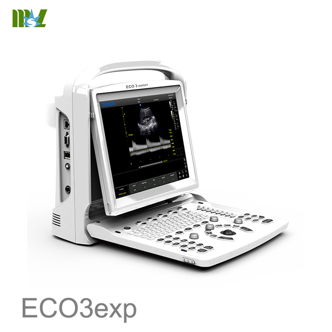 Ultrasonido portatil doppler Chison EC03exp price