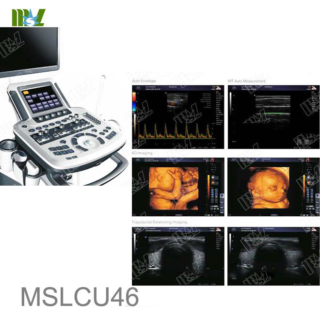 transvaginal ultrasound MSLCU46