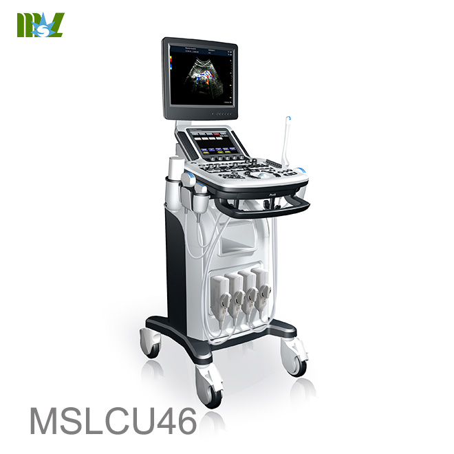 endoscopic ultrasound