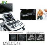 best ultrasound machine for