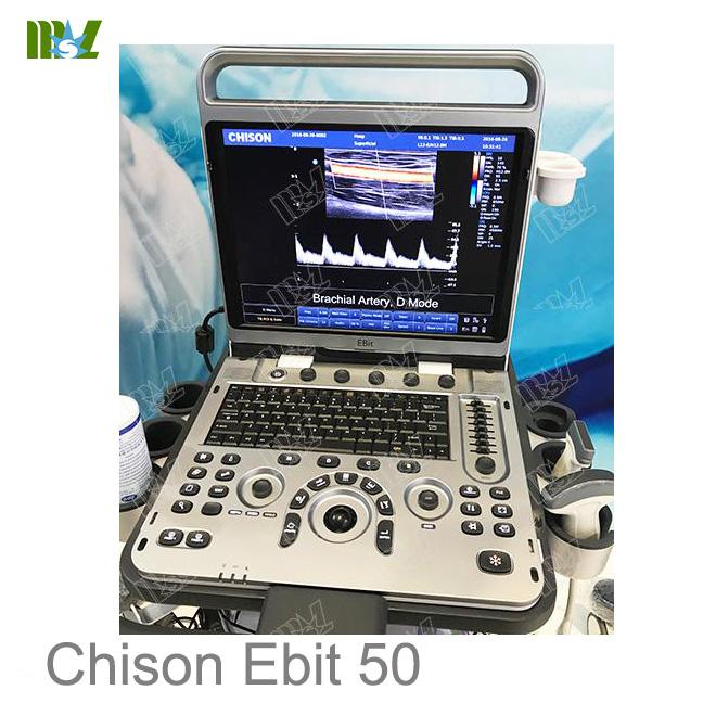 ultrasonido 4d doppler vascular Chison Ebit 50 price