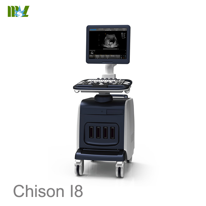 ultrasonido abdominal chison i8 : ultrasonido 4d doppler obstetrico