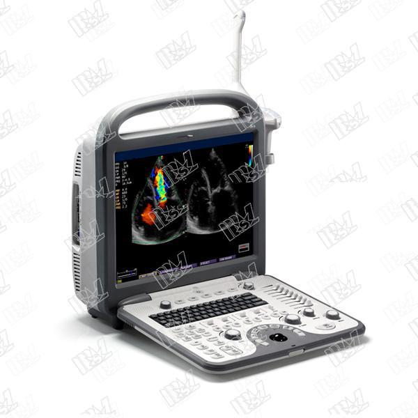 Sonoscape S8 Cardiac Stress Echo color doppler ultrasound