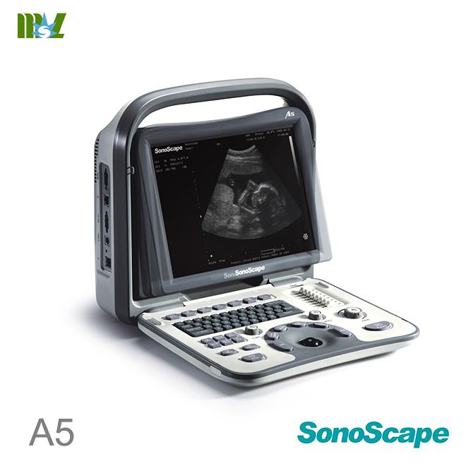 ultrasonido portatil sonoscape a5 price list : ultrasonido abdominal
