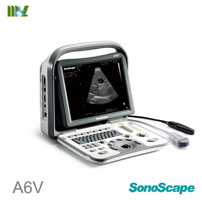 SonoScape A6v veterinary ultrasound : ultrasonido obstetrico
