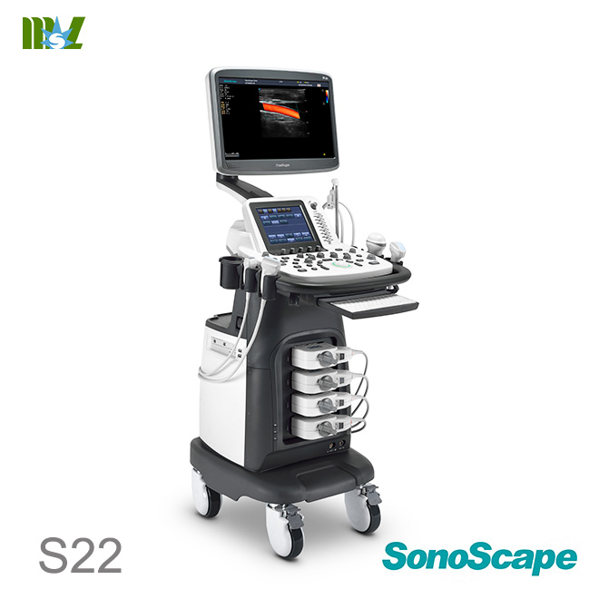 Eco doppler carotidian SonoScape S22 price : eco doppler