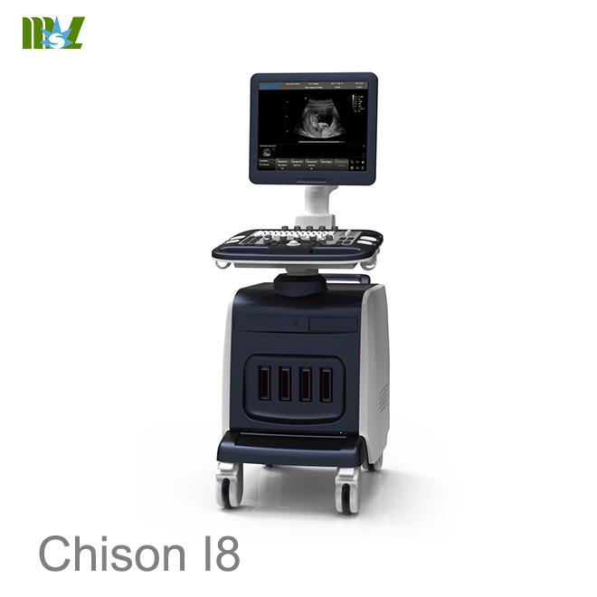 ultrasonido abdominal chison i8 : ultrasonido 4d doppler obstetrico