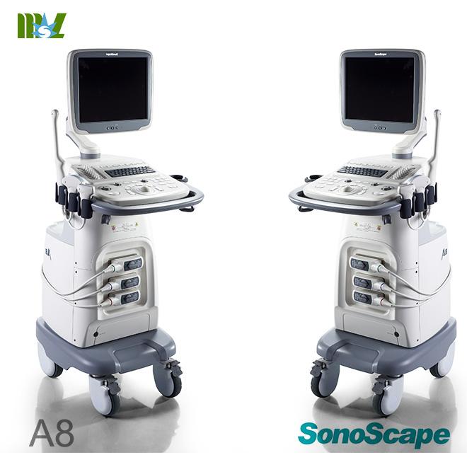 fetal doppler ultrasound
