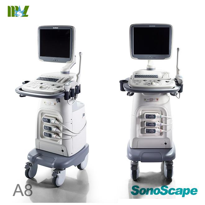 4 d ultrasound pics