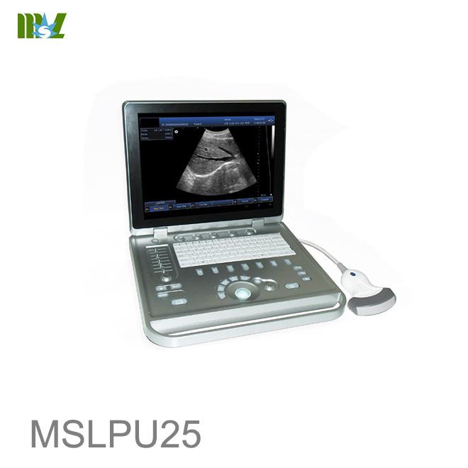 ultrasonido obstetrico estructural