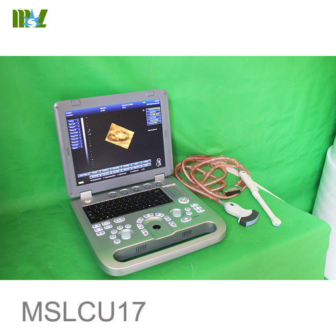 3d ultrasound machine cost