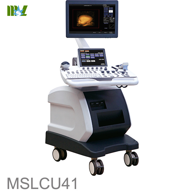 Doppler ultrasound