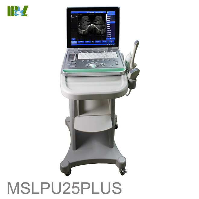diagnostic ultrasound