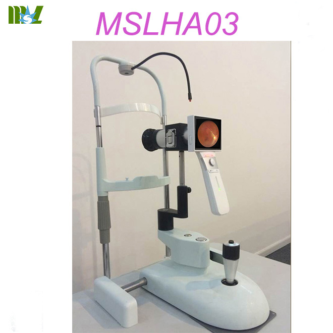 non mydriatic fundus camera