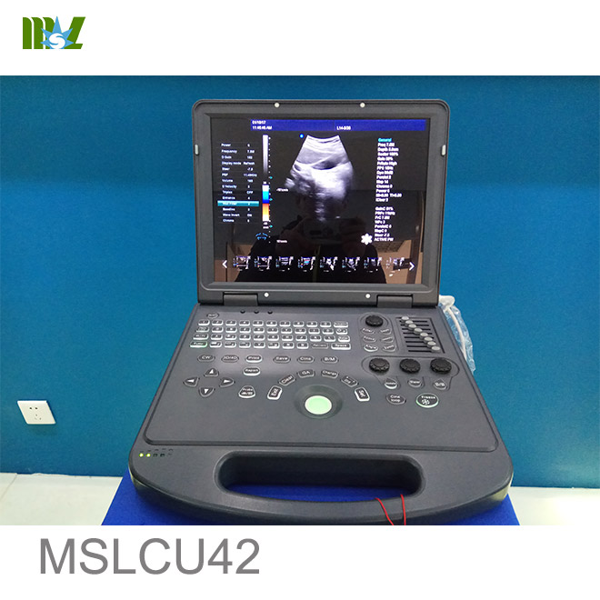 color doppler ultrasound cost